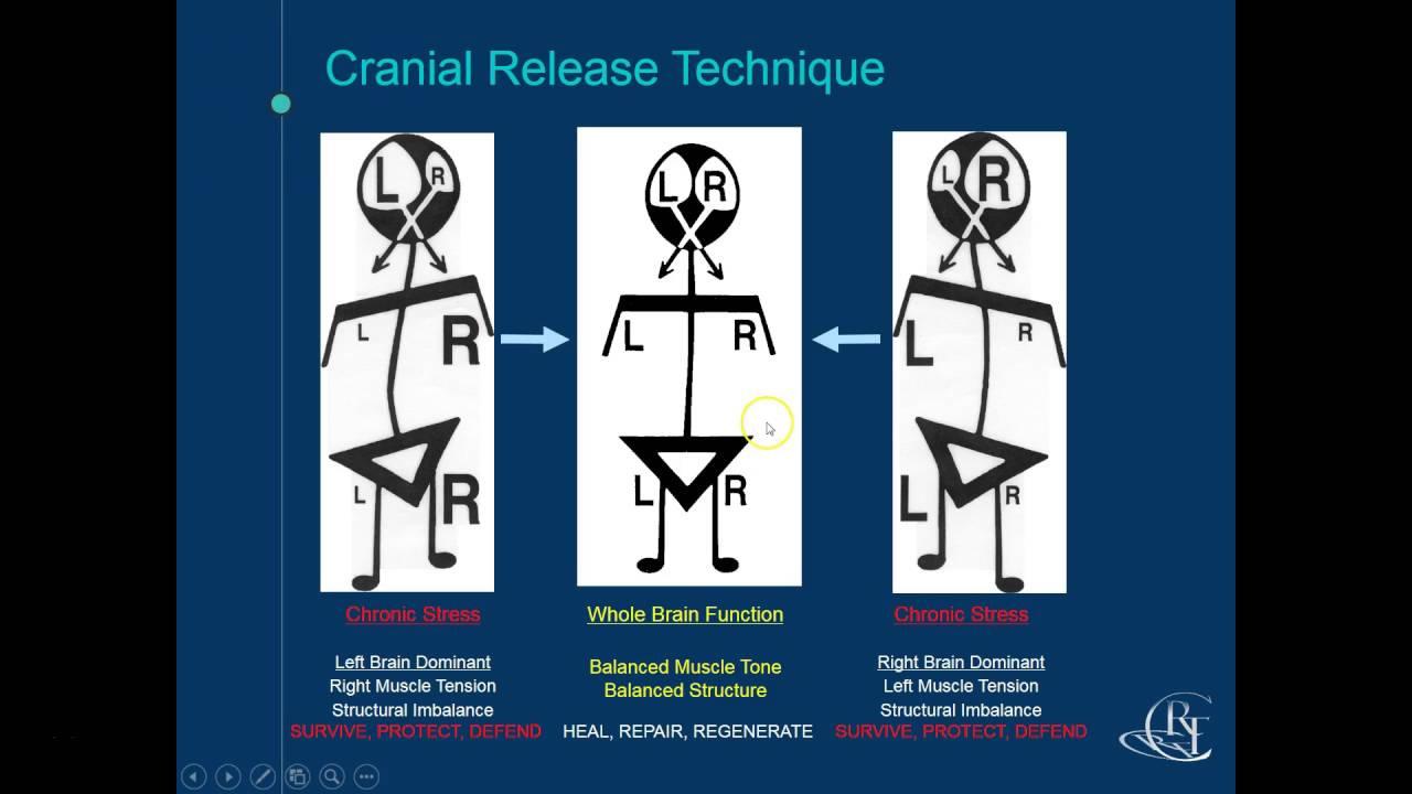 cranial-release-technique-diagram